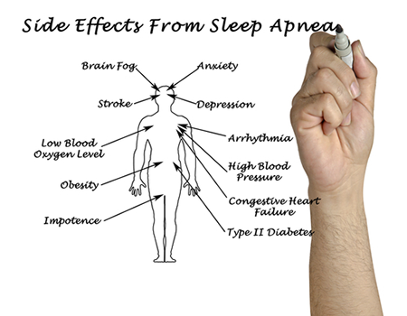 Sleep Apnea Effects | Hawkeye Sleep Center